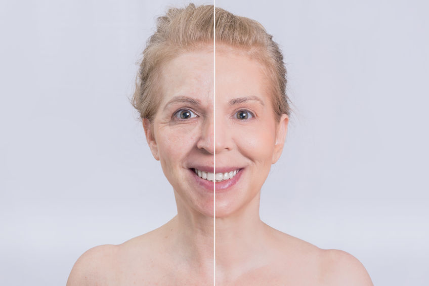 Before and After Cosmetic Eye Surgery